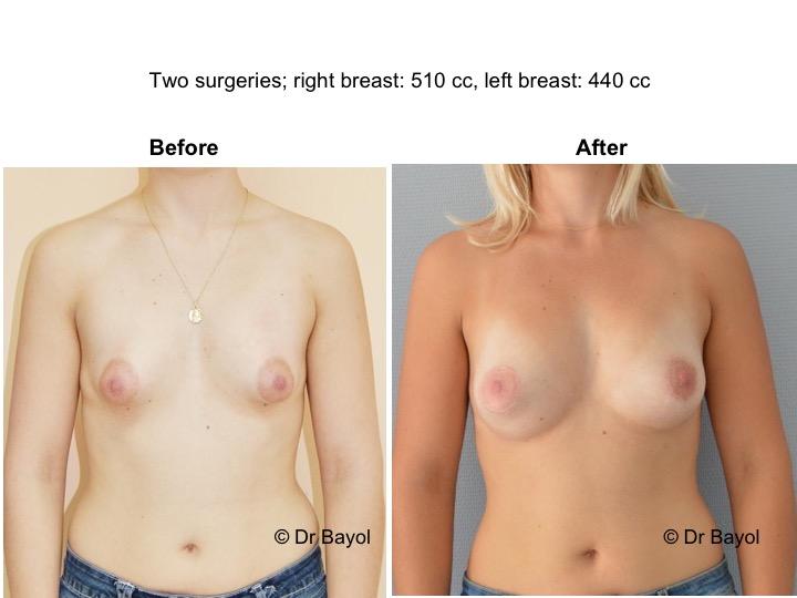 lipostructure mammaire genève