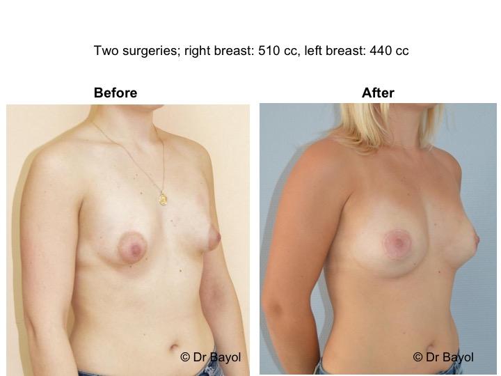 lipostructure mammaire lausanne