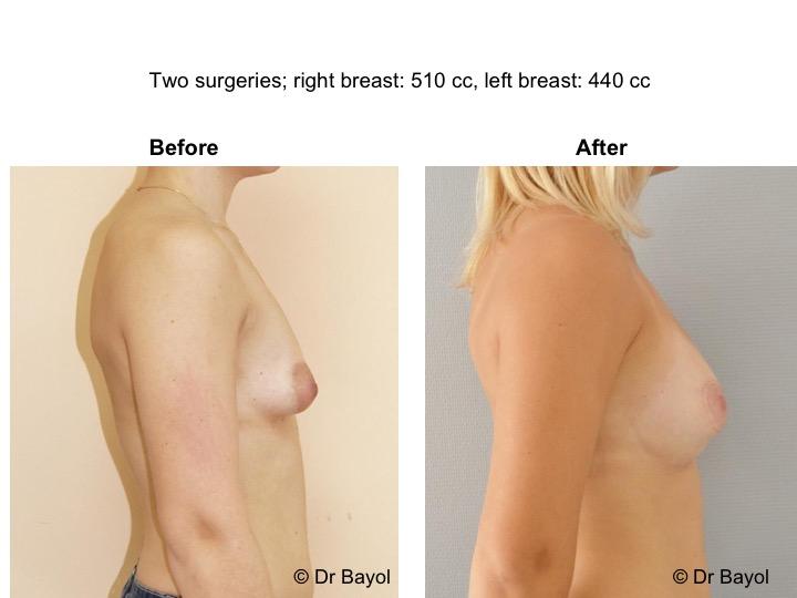 lipostructure mammaire suisse
