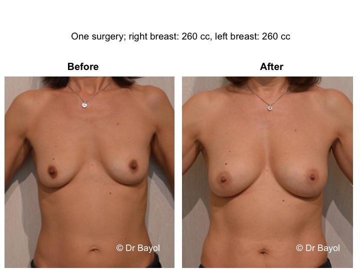 lipostructure seins genève