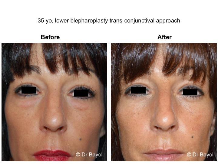 lower blepharoplasty geneva