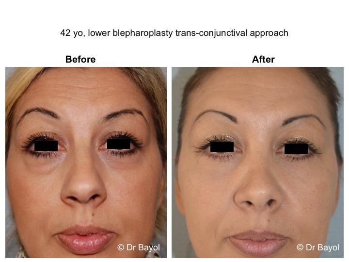 lower blepharoplasty lausanne