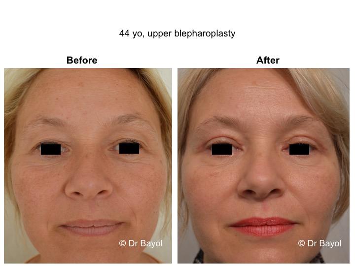 upper blepharoplasty geneva