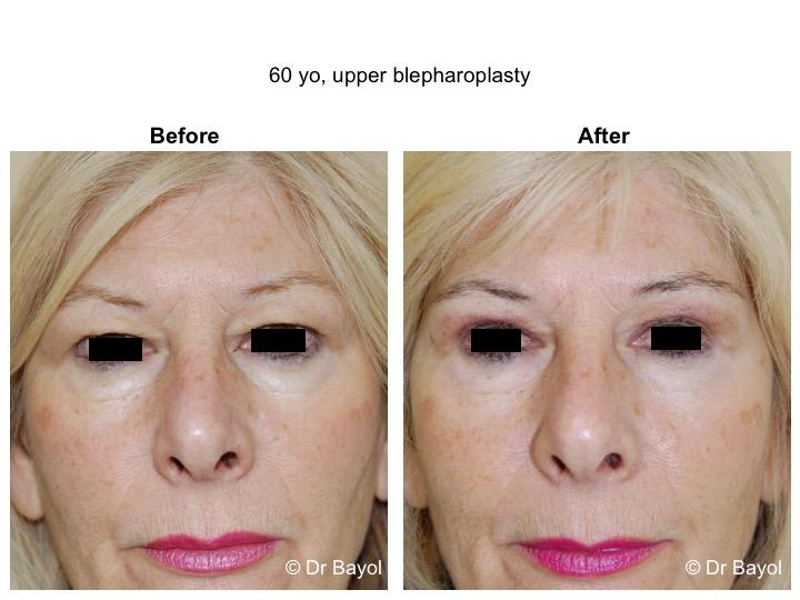 upper blepharoplasty lausanne