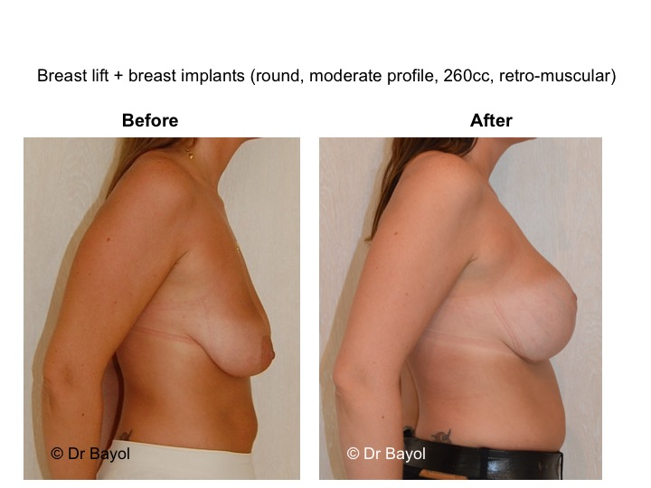 breast lift geneva