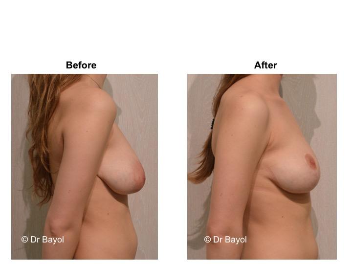 cure ptose mammaire genève