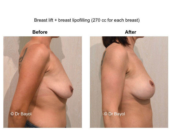 lifting mammaire genève