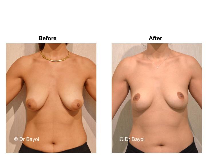 pexie mammaire suisse