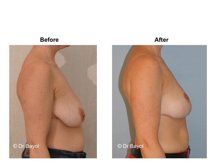 ptose mammaire genève