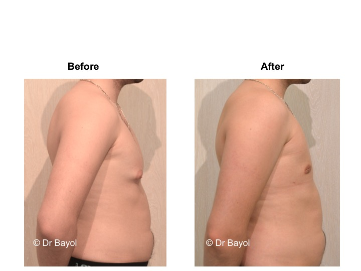best plastic surgeon gynecomasty geneva