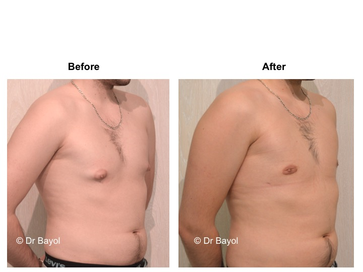 best plastic surgeon gynecomasty lausanne
