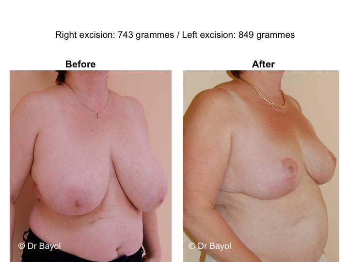 bon chirurgien réduction mammaire
