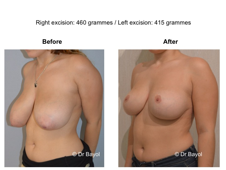 breast reduction lausanne