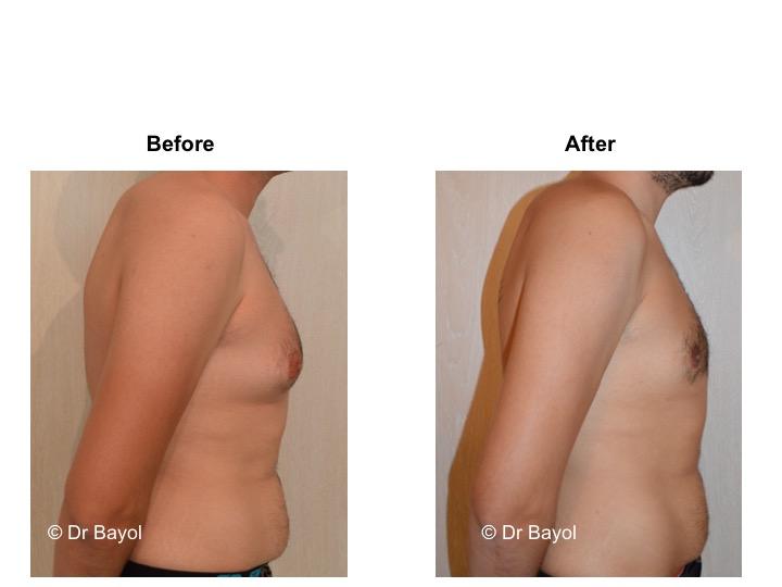 gynecomasty geneva