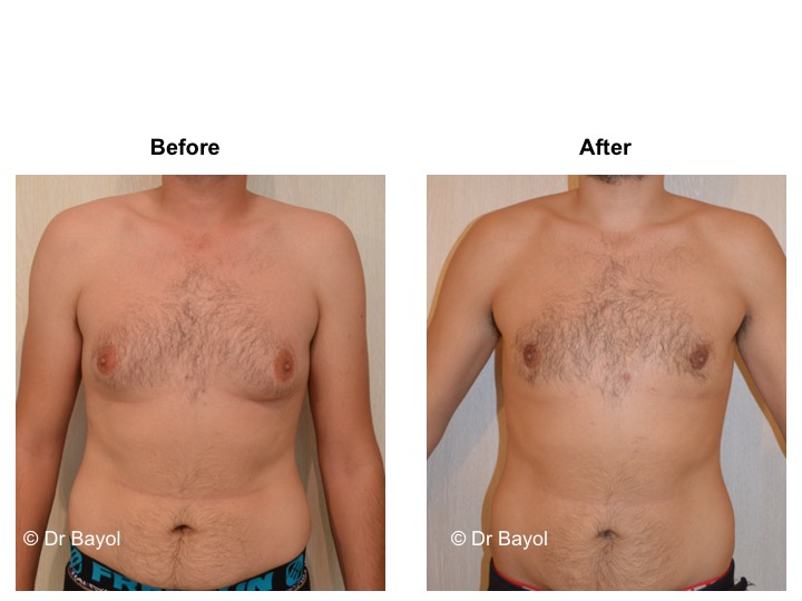 gynecomasty switzerland