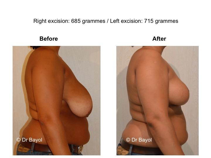 hypertrophie mammaire genève