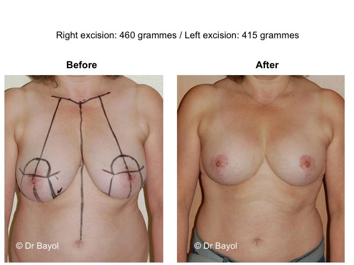 mammoplastie suisse