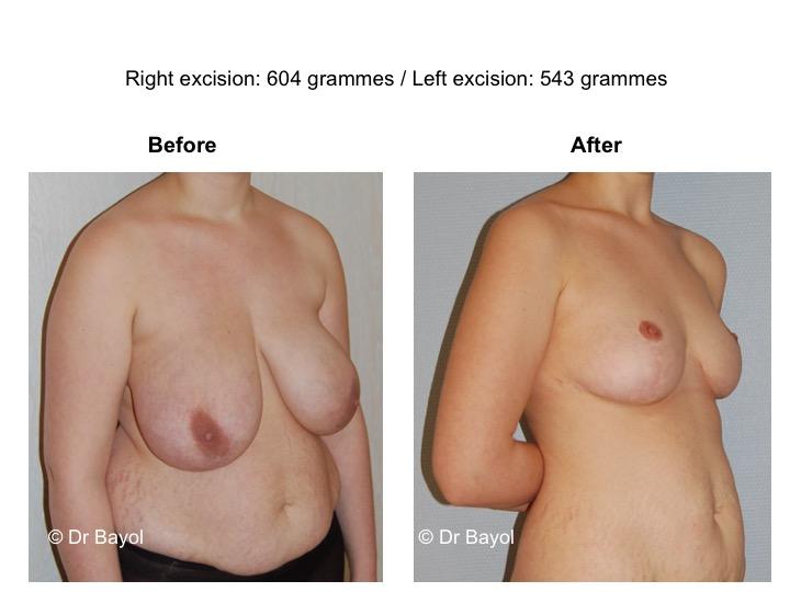 mammoplasty geneva