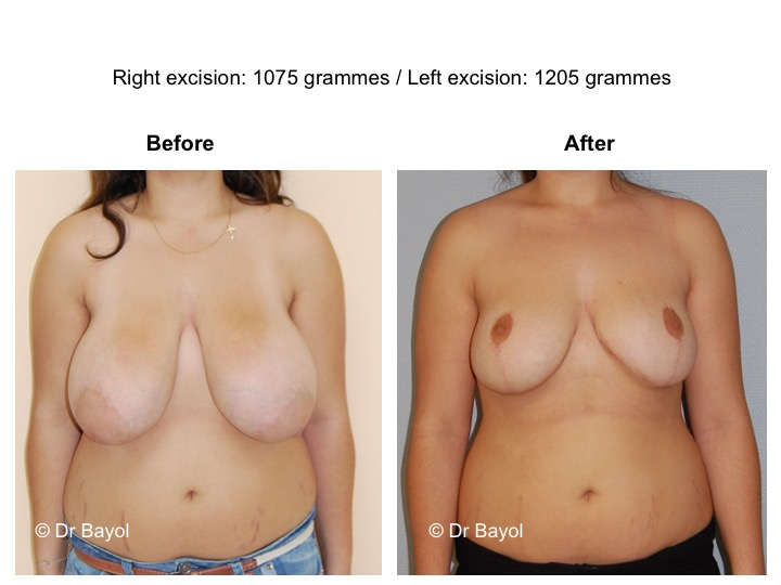 mammoplasty price