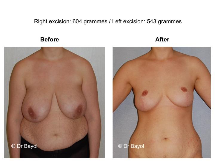 mammoplasty switzerland