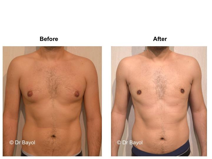 meilleur chirurgien esthétique cure gynécomastie lausanne