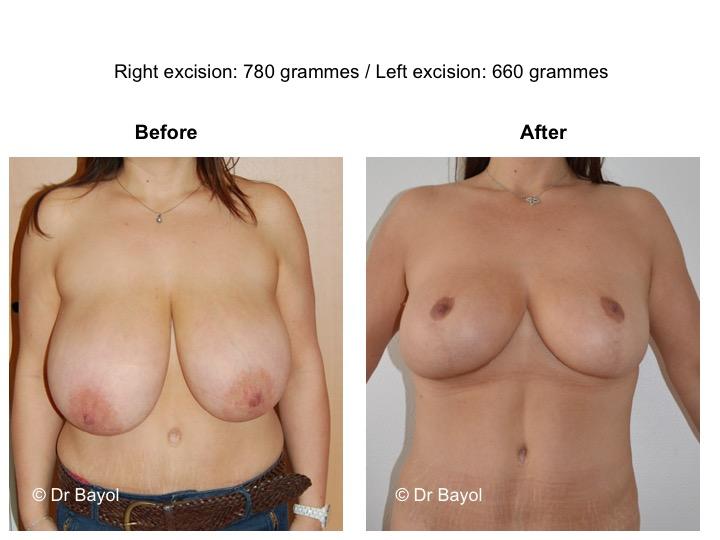 plastie mammaire de réduction genève