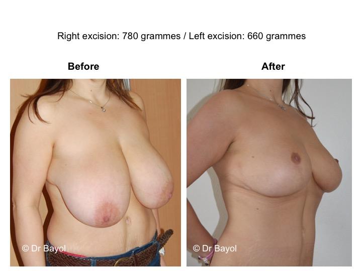 plastie mammaire de réduction lausanne