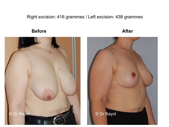 plastie mammaire de réduction suisse
