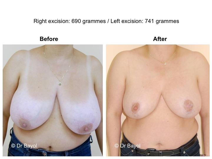 prix mammoplastie genève