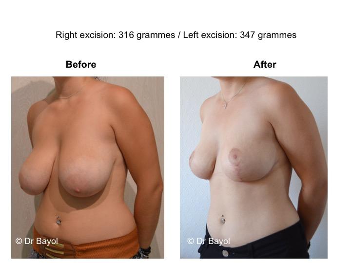 prix plastie mammaire de réduction genève