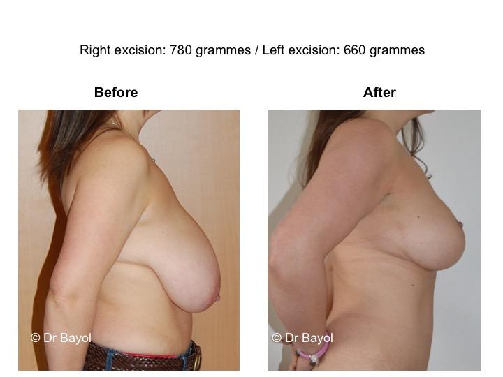 prix plastie mammaire de réduction lausanne