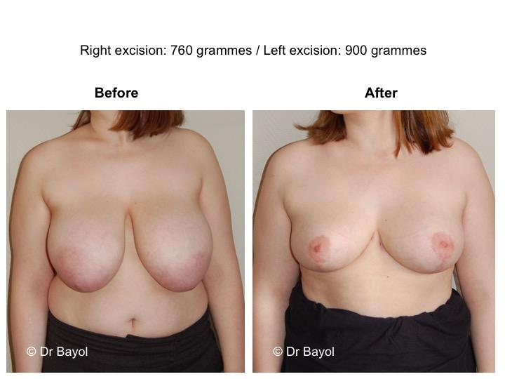 prix réduction mammaire genève