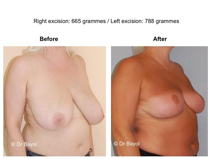 prix réduction mammaire lausanne