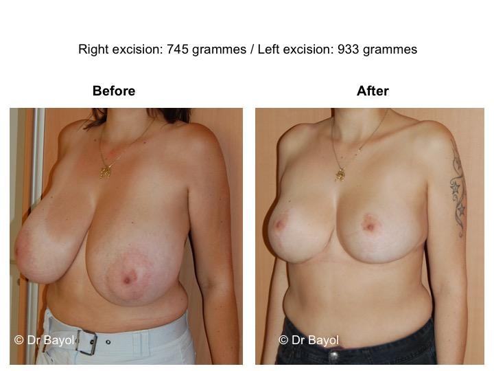 prix réduction mammaire