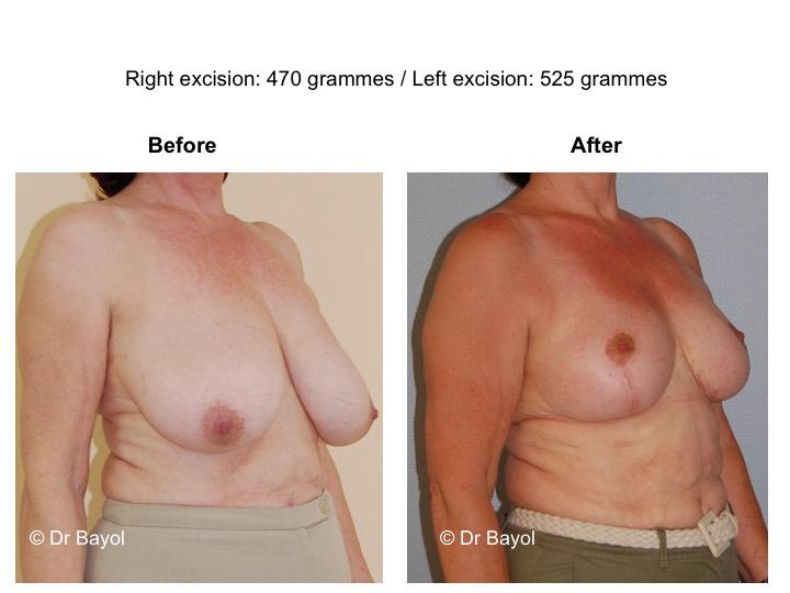 réduction mammaire genève