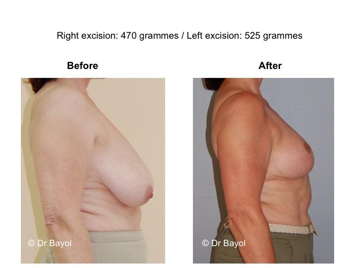 réduction mammaire lausanne