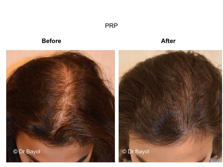 Hair PRP Geneva