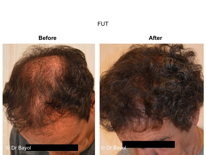 greffe cheveux FUT lausanne
