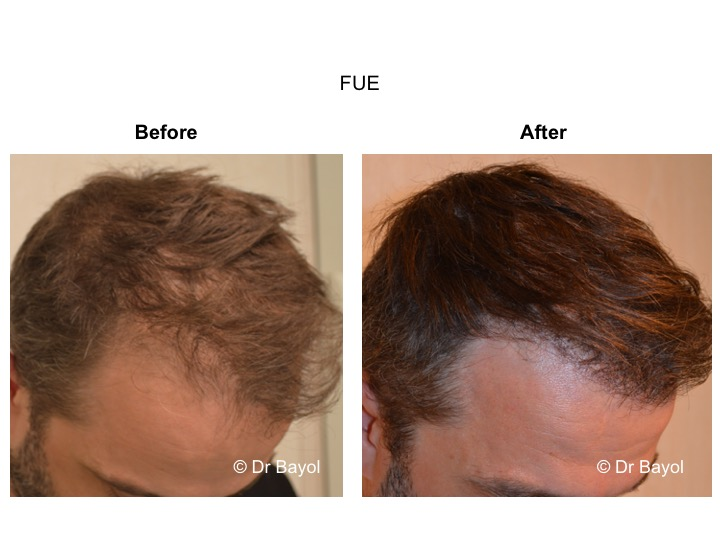 hair graft FUE Lausanne