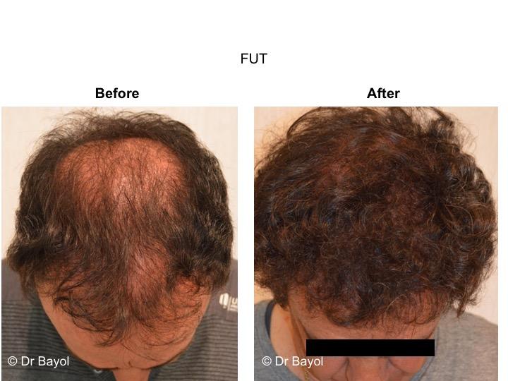 Implant capillaire FUT lausanne