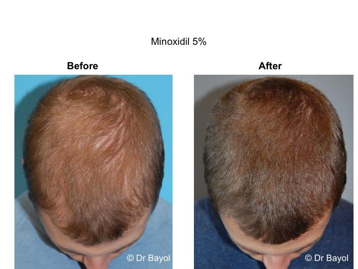 traitement calvitie chute de cheveux