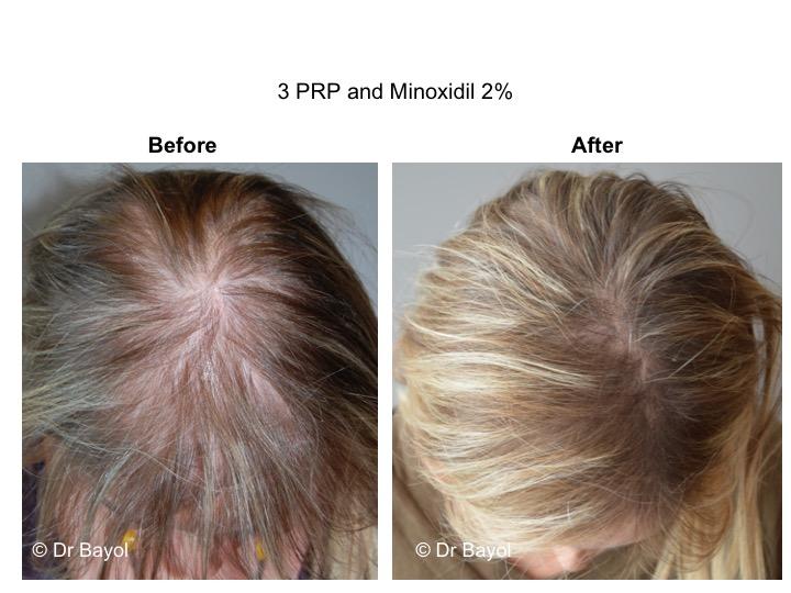 PRP cheveux Genève