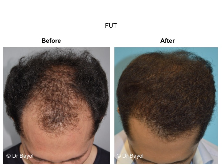 hair graft FUT switzerland