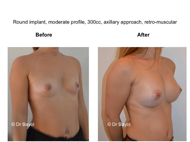 meilleur chirurgien augmentation mammaire lausanne
