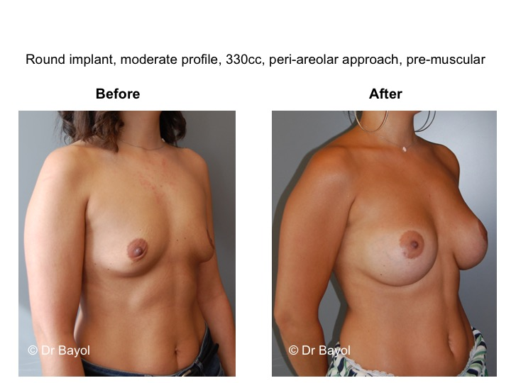 meilleur chirurgien augmentation mammaire
