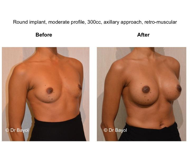 meilleur chirurgien prothèses mammaires genève