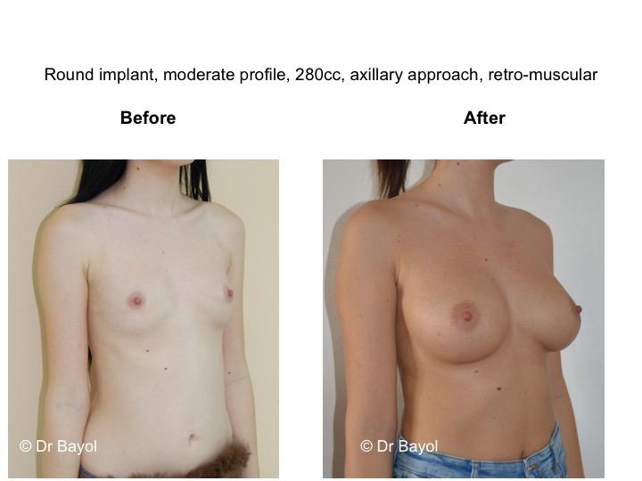 meilleur chirurgien prothèses mammaires lausanne