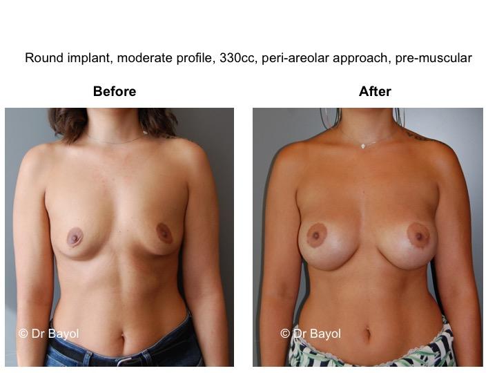 meilleur chirurgien prothèses mammaires