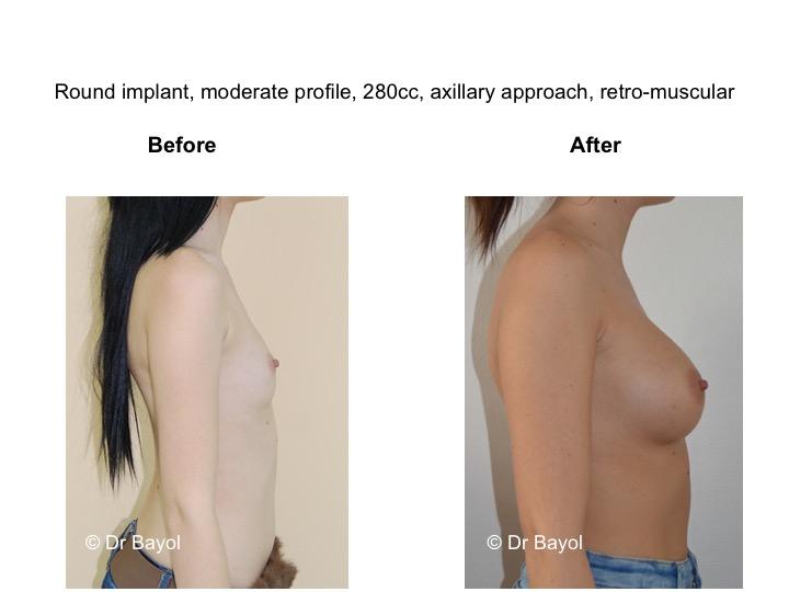 prix prothèses mammaires lausanne