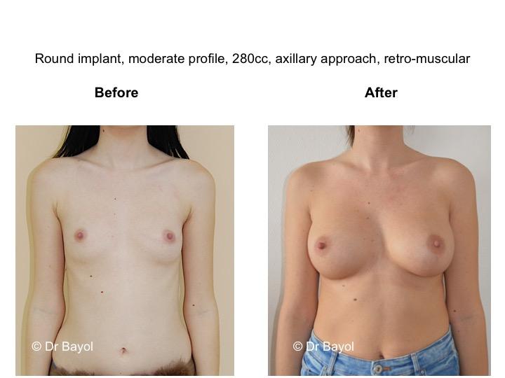 prix prothèses mammaires